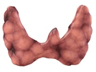 Thyroid_nodules
