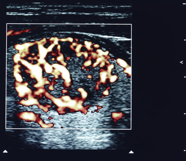 What is a mildly complex round isoechoic solid nodule in the left ovary?