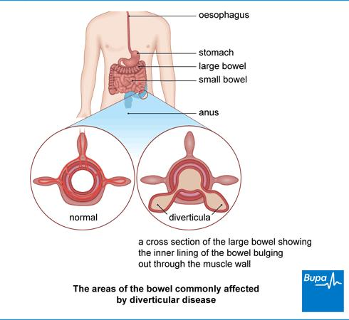 What are the symptoms of Crohn's disease?