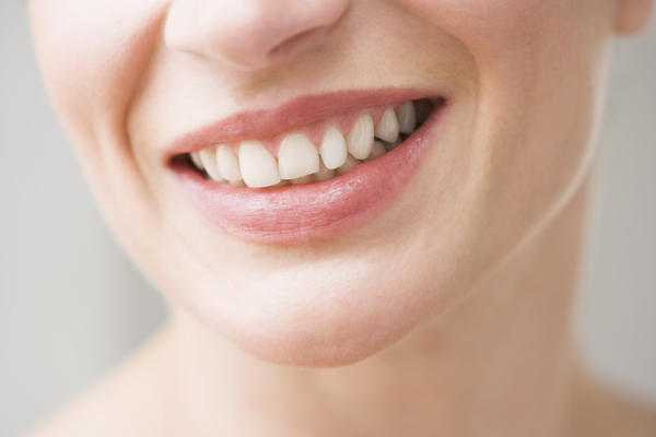 What teeth whitening brand would dentists recommend?