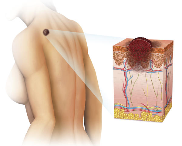 Is it possible for lymph nodes to be found on the back?