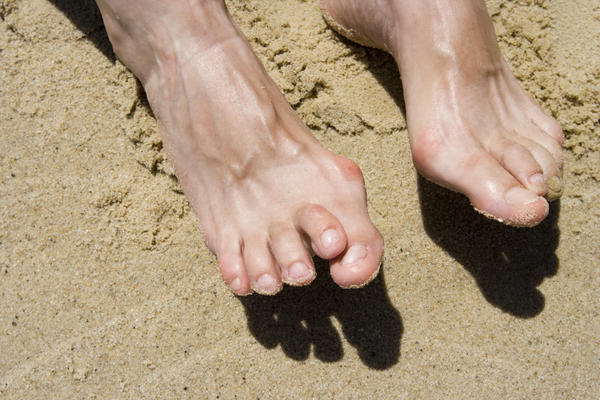 Does having short toes decrease your chance for hammer toe?