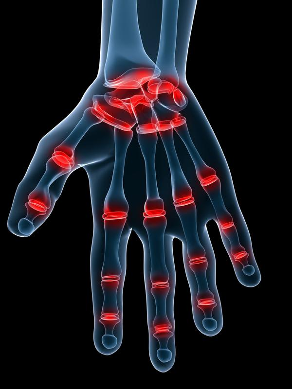 What is the treatment of arthritis in the hand?