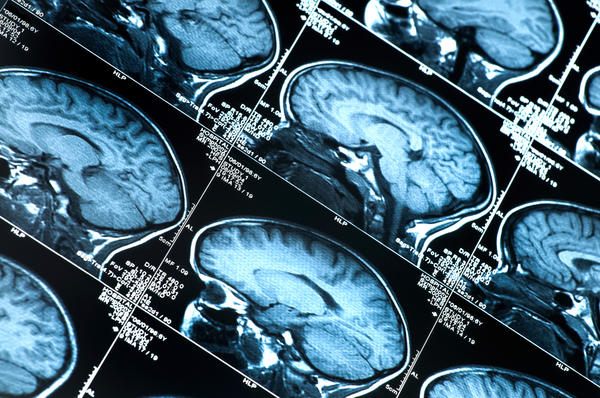 Do brain av malformations show up on plain mri's?