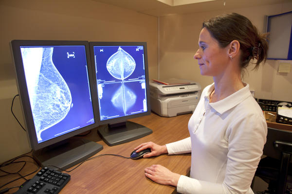 What does breast cancer look like on an xray?