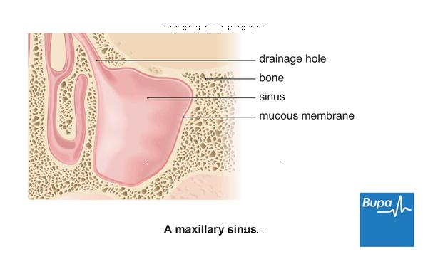 My brother has chronic sinusitis.He got nasal polyps &were removed surgically 10 yrs ago, now he xperiences periorbital pain.Is it due to his snusitis?