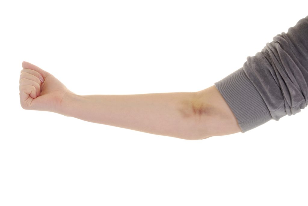 Bruising Answers On Healthtap