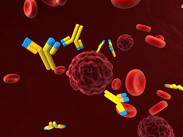 What is a positive SM antibody blood test for SLE?