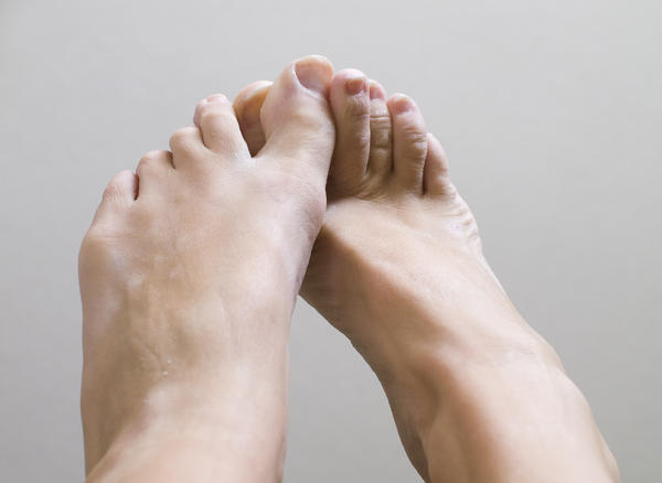 What causes itching of the hands and feet? Is it something serious and what can be taken to stop the itching?