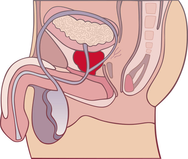 What to do if I have many symptoms of enlarged prostate gland and i'm becoming worried. What could happen?