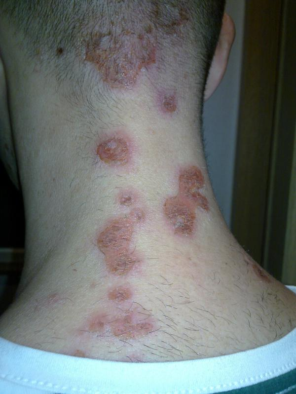 I went to the doctor today and was given a vague diagnosisof impetigo or MRSA on buttock. Is kissing safe?