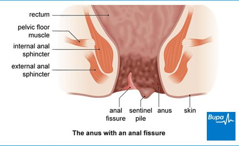 What can someone do for an anal fissure?