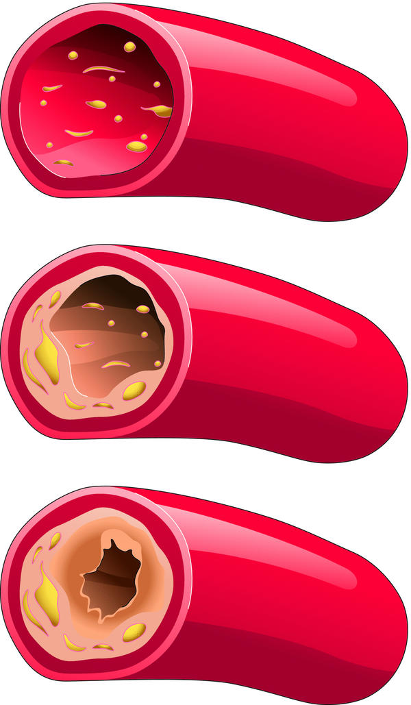 What physical signs and symptoms of having high cholesterol level are there?