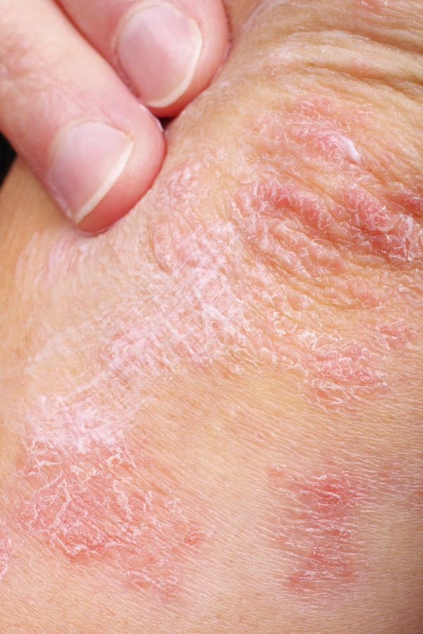 What does psoriasis usually look like?