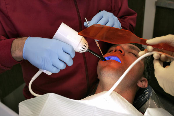 What is the best treatment of cavity on a root canal?
