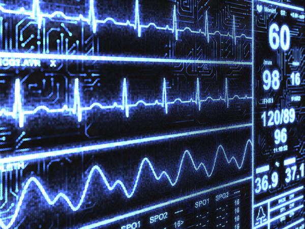 How do a ECG (ekg) strip recorder and a cardiac monitor differ?