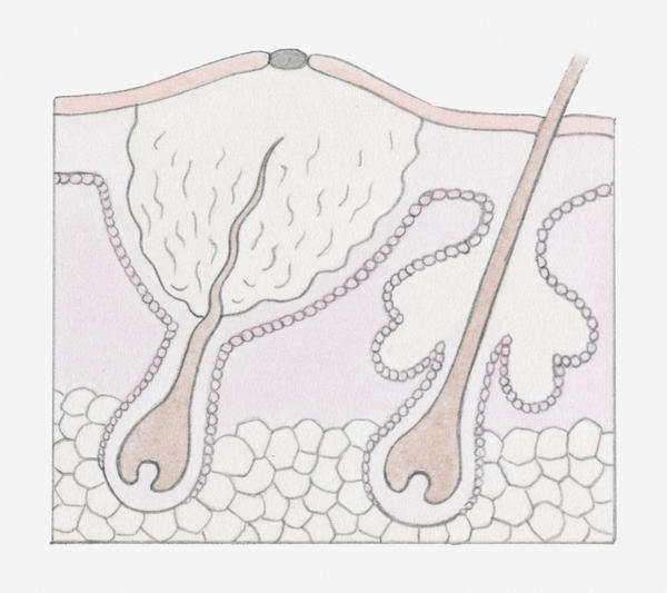 What does a boil in my vaginal area look like?