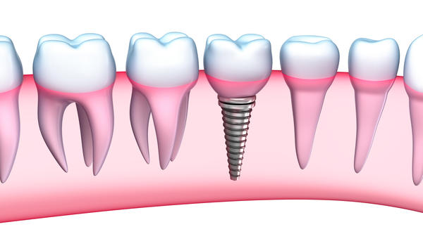 Dental implants are rigid and cannot adapt as a persons bite changes over time. Is this true?