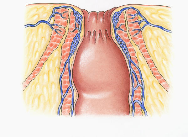 Can anal sex help hemorrhoids