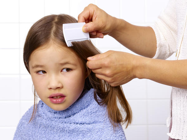 Head lice remnants in hair - how to remove them?