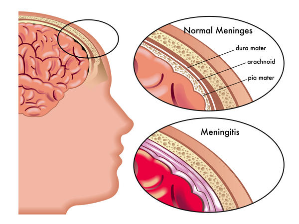 What is thr sytoms for meningitis?