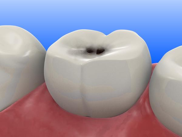 How do cavities get fixed in the front teeth without being noticeable?