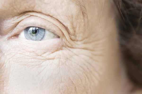 How wrinkles occur around the eyes?