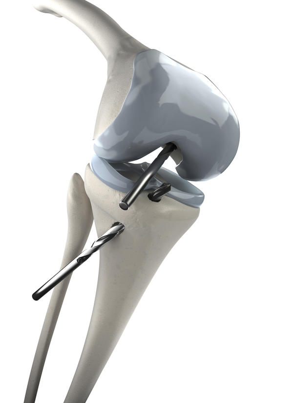 Can you tell me what a left knee arthroscopy tibial tubercle osteotomy consist of?