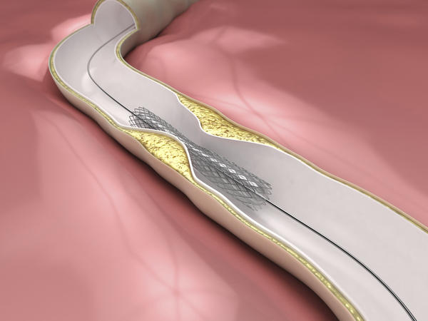Whats a peripheral intravascular stent placement?