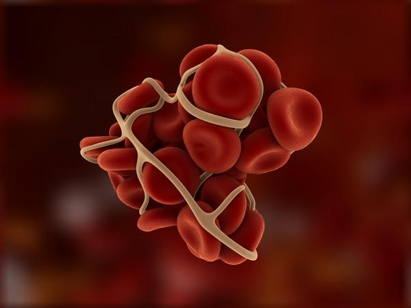 Could you tell me what you know about deep vein thrombosis. Is it something that takes months?