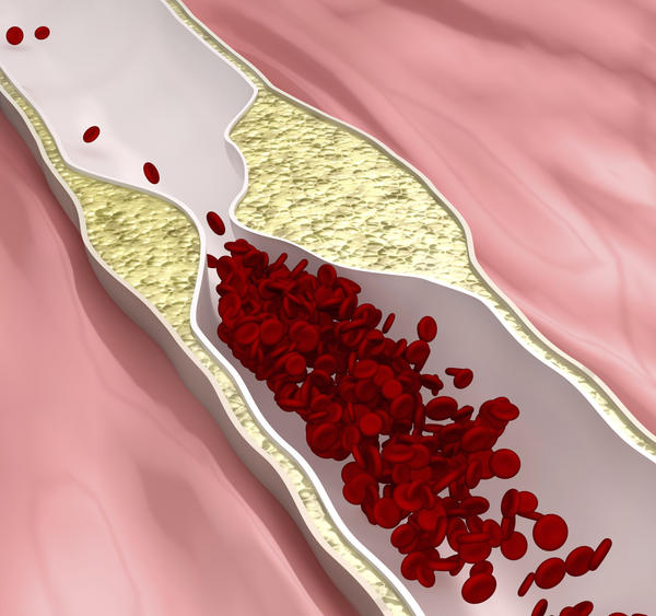 What are the symptoms of atherosclerosis?