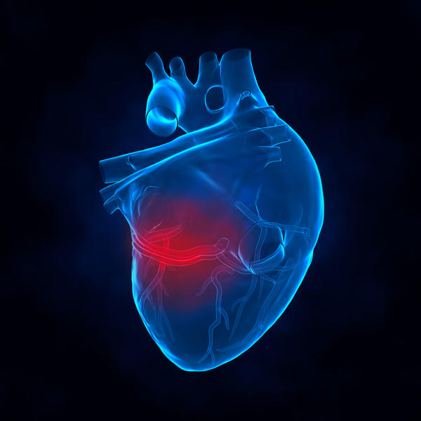 What factors make myocardial infarction worse?