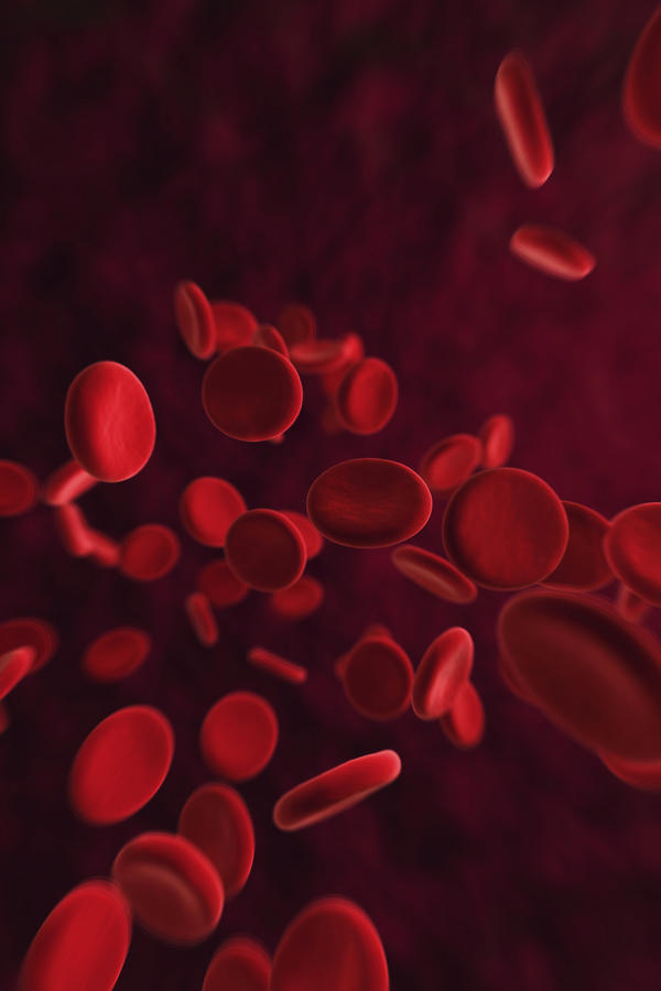 What do the red blood cells look like under the microscope in iron deficiency and in pernicious anemia? Any other blood cells affected?