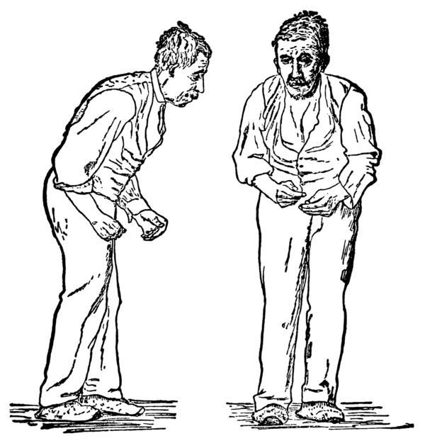 What causes an elderly gentleman to show slowness of gait, bent over stature, confusion?