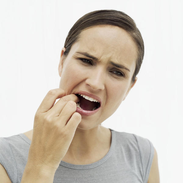 Are mouth sores early or late symptoms of HIV?