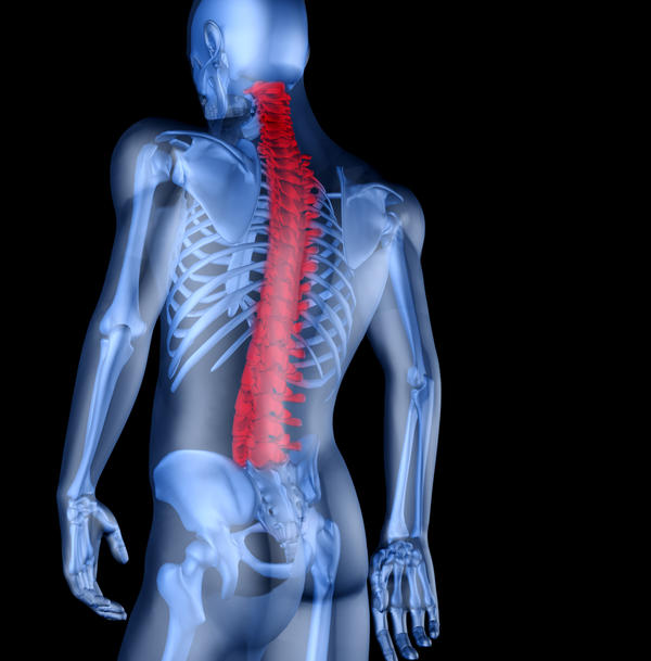 What is fractured spine vs back? What all breaks?