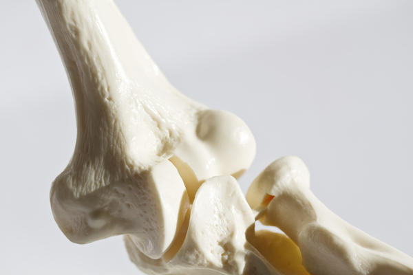 Can you reverse bone loss at 80?
