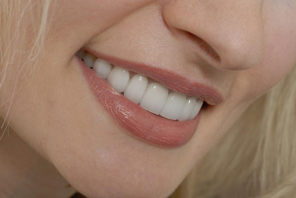 Are composite veneers the best choice for whitening teeth with enamel loss?