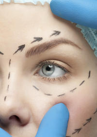Is blepharoplasty an office procedure? Is blepharoplasty done in the surgeon's office, or is it a hospital procedure?
