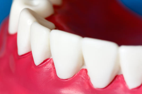 Is damaged looking gums due to loss of enamel at the gum line area gum disease or is their another name for this?