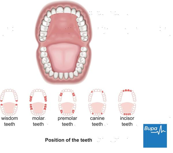 Where can a cavity spread to?
