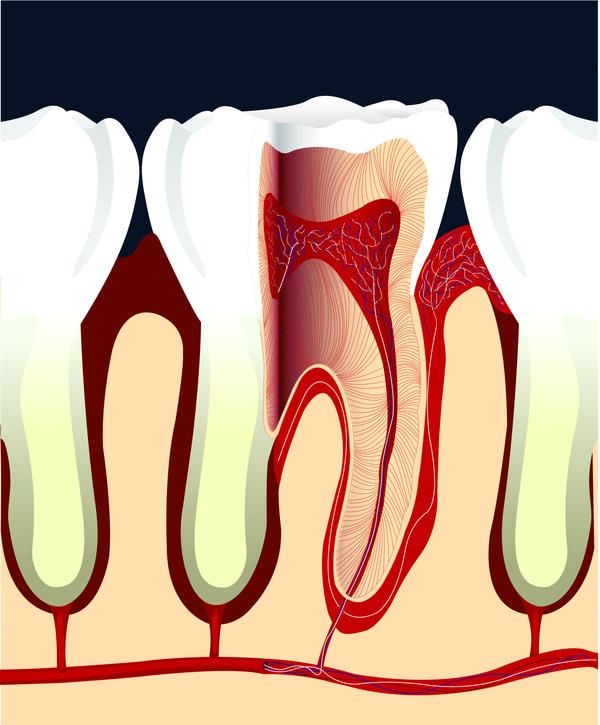 How long can face swelling last while on an antibiotic after a root canal?