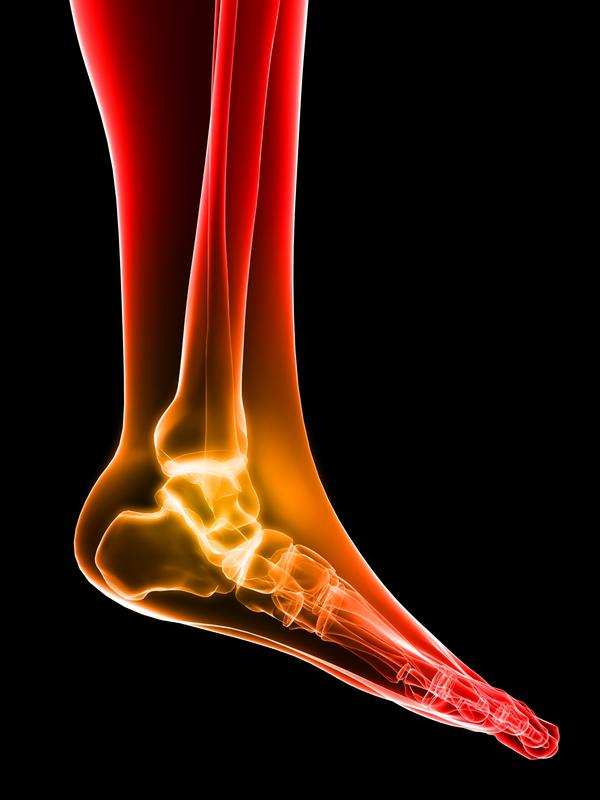 Ice for peroneal nerve problem causing foot drop? Would that help?