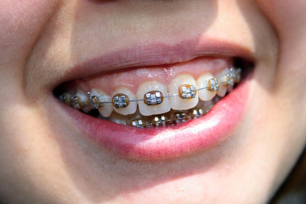 How do functional orthodontics address an overjet (and overbite) caused by a protruded upper jaw?