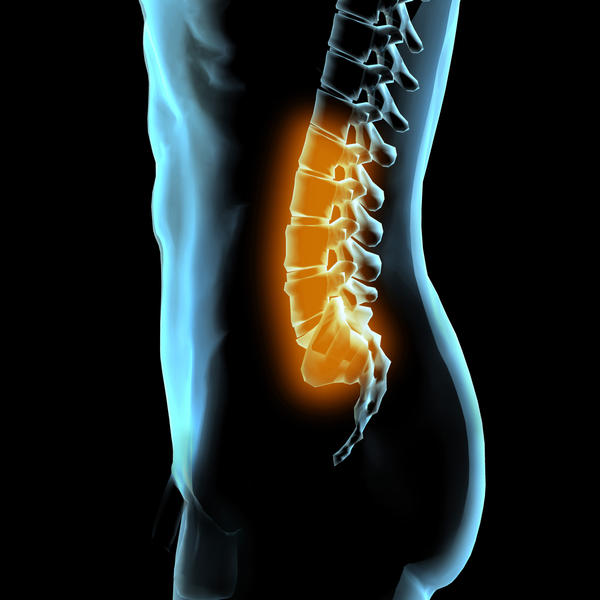 How do i handle lumber lordosis?