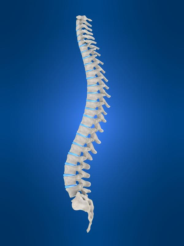 What is Thoracic spondylosis without myelopathy?