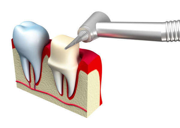 Can resin bonding be added to minimally increase height of ceramic crown(s) to better balance a person's bite? Recently, lost a molar.