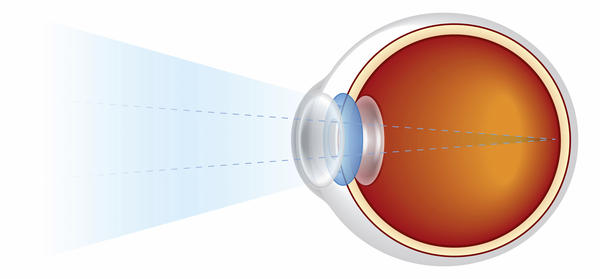 What is a blind spot? Why do we have one?