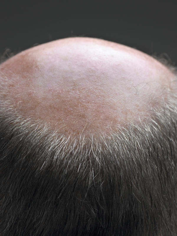 What are good remedies for male pattern baldness?