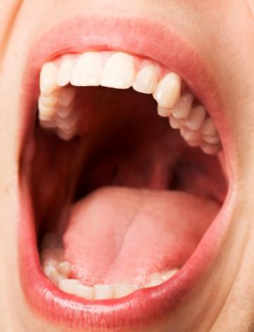 Are red bumps and red visible vein-like lines on uvula normal?